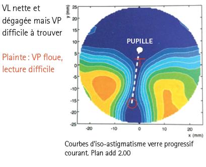 Publi-rédactionnel   Les difficultés d adaptation des verres ... 6c3795c4711e