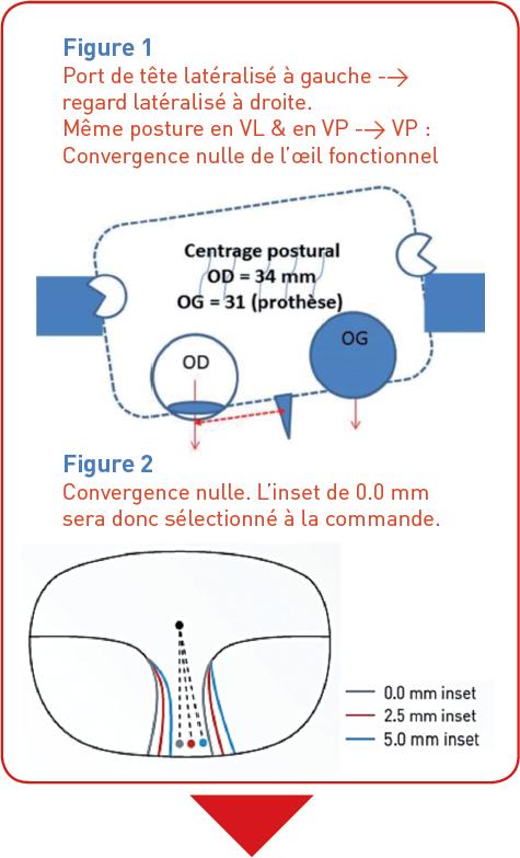 1b5059e4e635d4 Solution   Technologie SHAMIR CLOSE-UP ™ Verres progressifs Shamir avec  Inset personnalisé décentrement VL VP   0,0 mm.