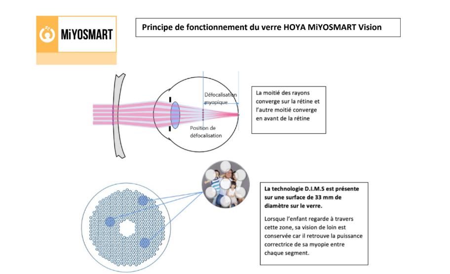 Principe de fonctionnement du verre Miyosmart Vision