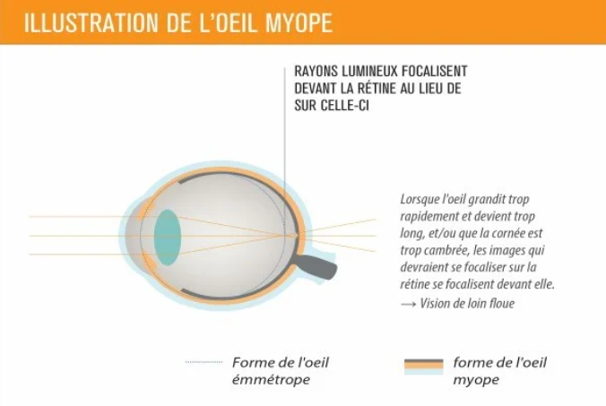 Illustration de l'oeil myope