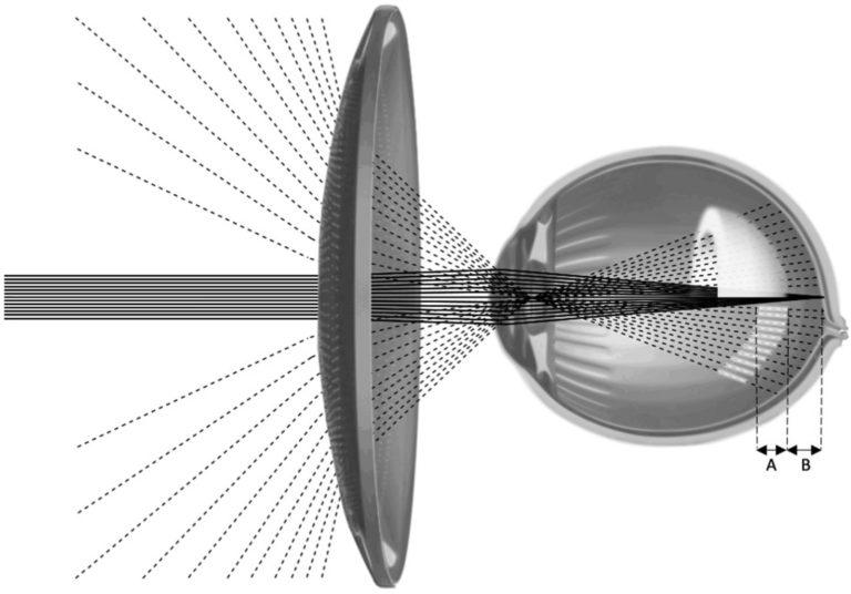 Illustration du dispositif d'étude fournissant un volume de défocalisation myope (VoMD) (coquille blanche) devant la rétine à tr