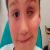 Un enfant perd son œil à cause d'un pistolet à fléchettes