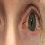 Les lentilles de contact souples, moyen de surveillance des maladies oculaires?