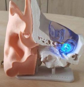 Modèle d'une oreille avec un implant optogénétique