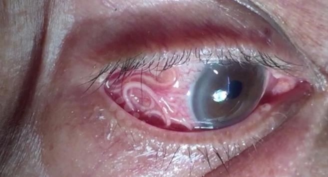 Un médecin retire le parasite de 15 cm logé dans l'oeil d'un patient