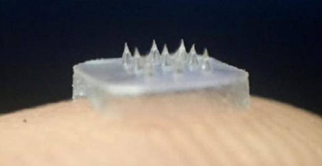 Des lentilles composées de micro-aiguilles pour traiter les pathologies ophtalmiques