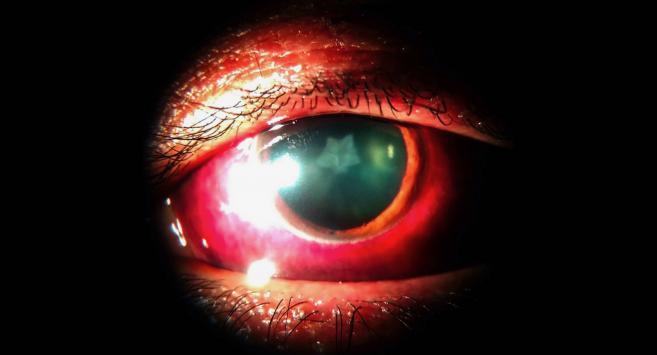 cataracte Inde