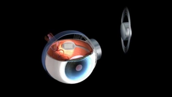 Marisol Touraine annonce le remboursement intégral de l'oeil bionique Argus II