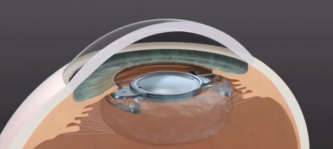 Traitement de la cataracte : un implant évolutif bientôt sur le marché français