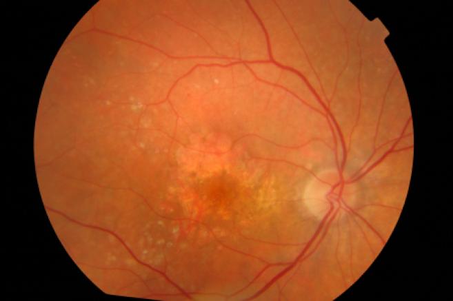 DMLA : un essai clinique tourne mal, trois femmes perdent la vue