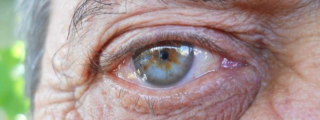 Détecter la maladie d'Alzheimer grâce à un examen ophtalmologique