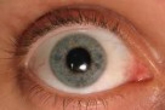 Glaucome : l'horloger Tissot planche sur une lentille de dépistage