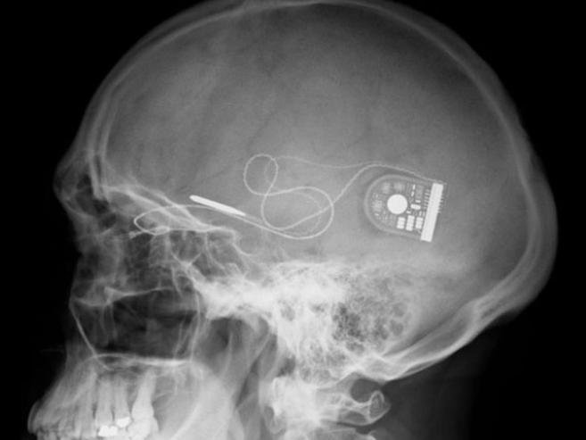Retina Implant AG : des avancées sur la technologie d'implants sous-rétinien Alpha IMS