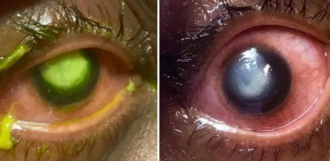 Dormir avec ses lentilles : un ophtalmologiste publie des photos chocs d'un patient