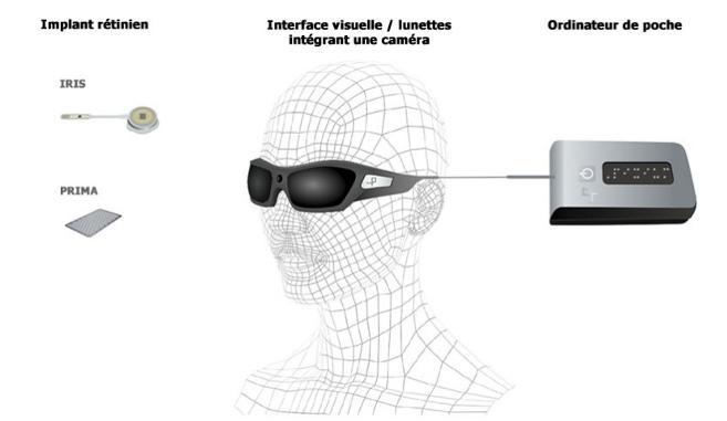 Pixium Vision, spécialiste de l'implant sur rétine entre en bourse