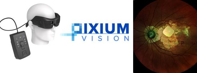 Le système Prima est composé d'un implant sous-rétinien. Le patient porte des lunettes spécifiques qui lui projettent l'image.