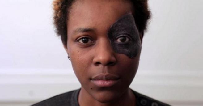 Prisca, 29 ans, a été victime d'un cancer de l'œil gauche