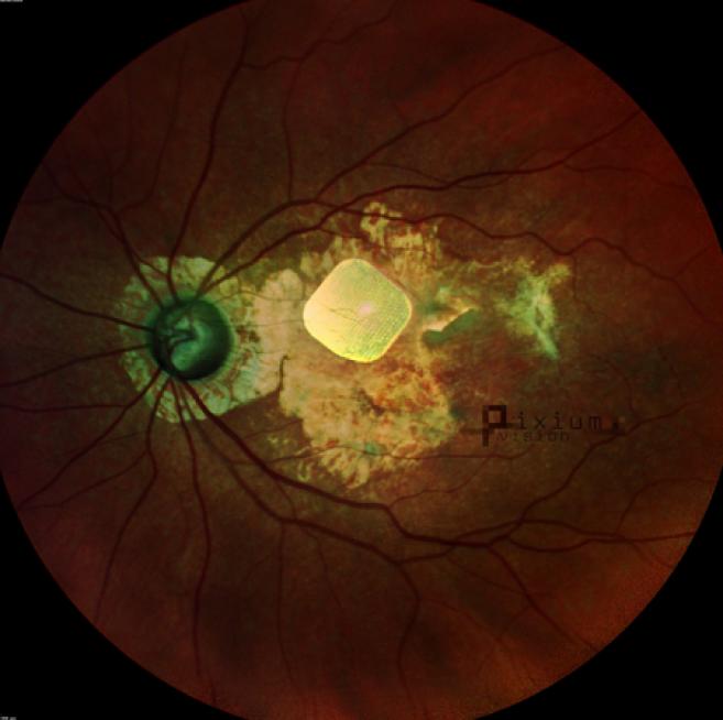 Image de l'implant rétinien Prima - ©Pixium Vision