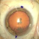 Un collyre pour remplacer la chirurgie de la cataracte