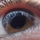 L'opération de la cataracte réduit les risques d'accident de la route