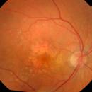DMLA: un essai clinique tourne mal, trois femmes perdent la vue