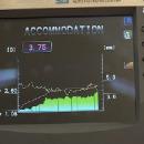 TV Reportage Silmo: Nidek remporte un Silmo d'Or grâce à son nouvel auto-refractomètre