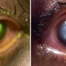 Dormir avec ses lentilles: un ophtalmologiste publie des photos chocs d'un patient