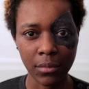 Après un cancer de l'œil, elle retrouve son visage grâce à une prothèse