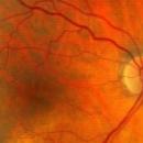 Google propose son aide aux ophtalmologistes