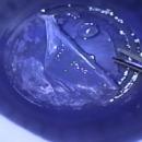 TV Reportage SFO 2012: la chirurgie de la presbytie avance à grands pas: méthodes et résultats