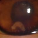 Un ver parasite retrouvé dans l'œil d'un patient de 17 ans