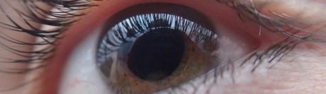 Une étude australienne montre que l'opération de la cataracte permet de réduire les risques d'accident de la route