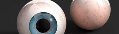 Innovation : nouvelle lentille de contact pour soigner les lésions oculaires